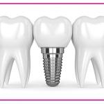 مراقبت های لازم بعد از ایمپلنت دندان