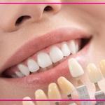 مراقبت های لازم بعد از لمینت دندان