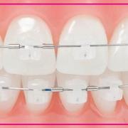 مراقبت های لازم بعد از ارتودنسی دندان