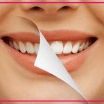 مراقبت های لازم بعد از بلیچینگ دندان