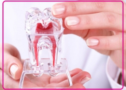 مراقبت های لازم بعد از درمان عصب کشی دندان